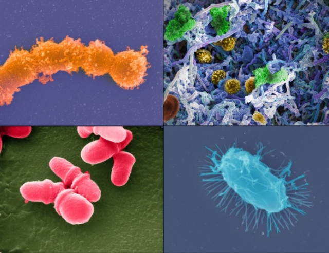 Image: Microbes