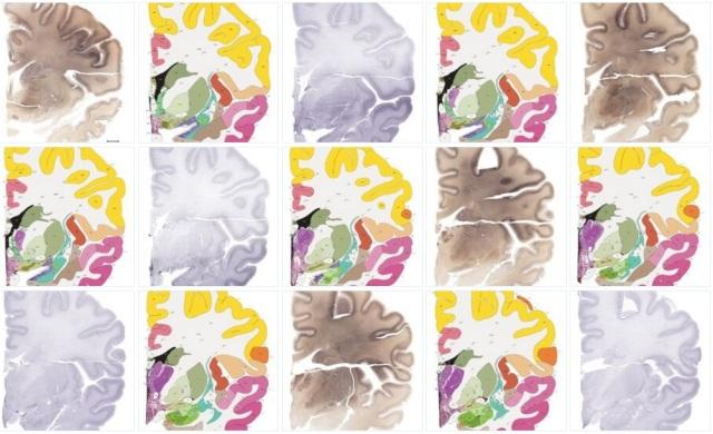 Image: Human brain atlas