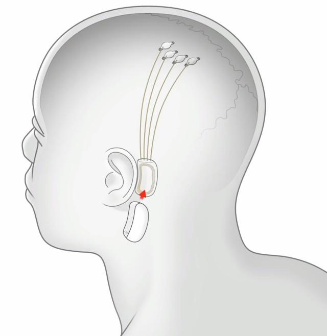 Neuralink connection